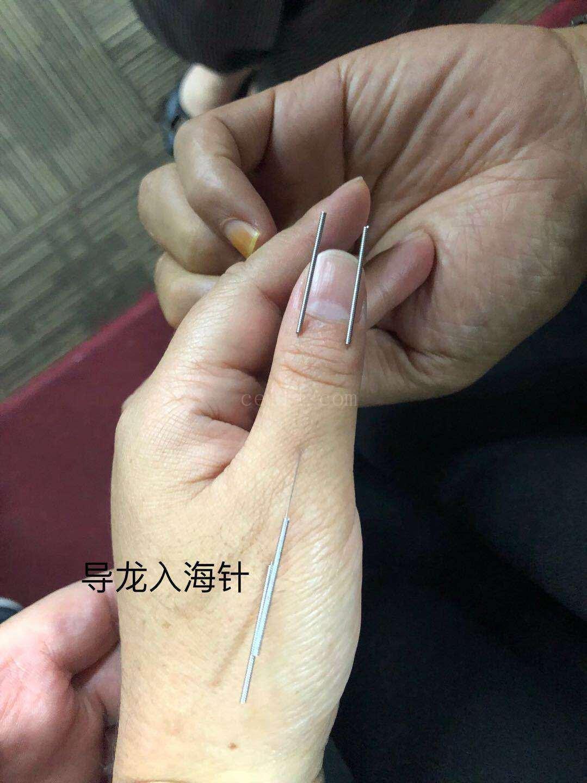 桂林中医针灸培训班